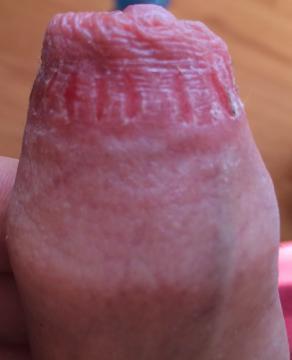 obriezka penisu